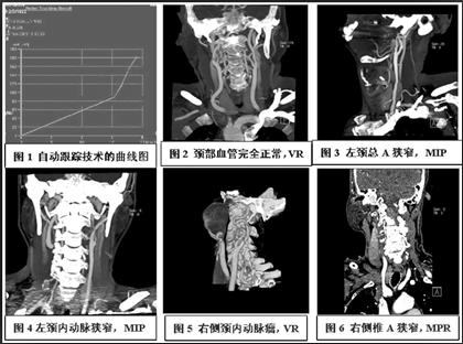 多排螺旋ct颈部血管成像的临床应用价值初探