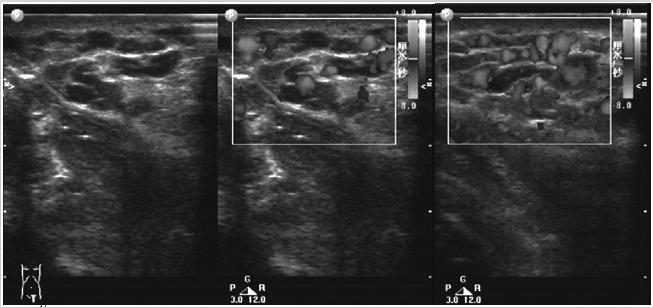 彩色多普勒超声在体表海绵状血管瘤中的诊断价值