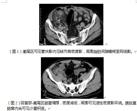 小肠粘膜层结构绘图