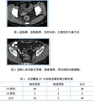 多层螺旋ct诊断结直肠肿瘤临床价值探讨