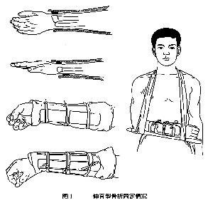 骨折手法复位小夹板外固定的治