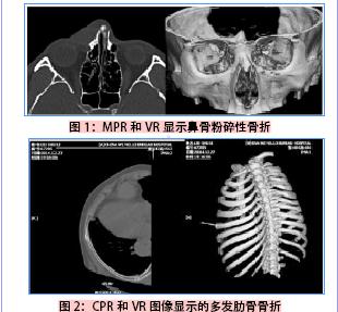 十六层螺旋ct后处理技术在全身复杂骨折中的应用价值