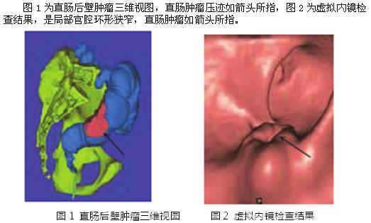 (湖北枣阳市第一人民医院 湖北 枣阳 441200) 【摘 要】目的:分析CT造影断层图像虚拟技术(64层)和CT仿真结肠镜的在结肠肿瘤诊断中的临床应用价值。方法:选取2013年5月至2015年1月期间在我院治疗结肠肿瘤的15例患者的临床资料进行回顾性分析,所有患者均予以CT造影断层图像虚拟技术(64层)和CT仿真结肠镜扫描观察,比较两种技术在临床中的应用价值。结果:所有患者的三维图像效果较好,虚拟内镜和CT仿真结肠镜的图像比较相差不大,可以准确观察到病变的位置确定解剖关系。结论:CT造影断层图像虚拟技术