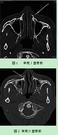 1鼻骨的解剖结构 鼻的支架由鼻骨和鼻软骨构成-足骨头解剖结构图