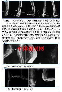 肱骨髁上骨折X线片近端旋转方向的判断体会 -打印预览