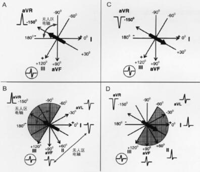 图3  avr导联心电图qrs波的主要类型