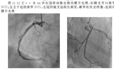 心脏血管前降支_选择性心脏冠脉造影128例影像表现分析--中国期刊网